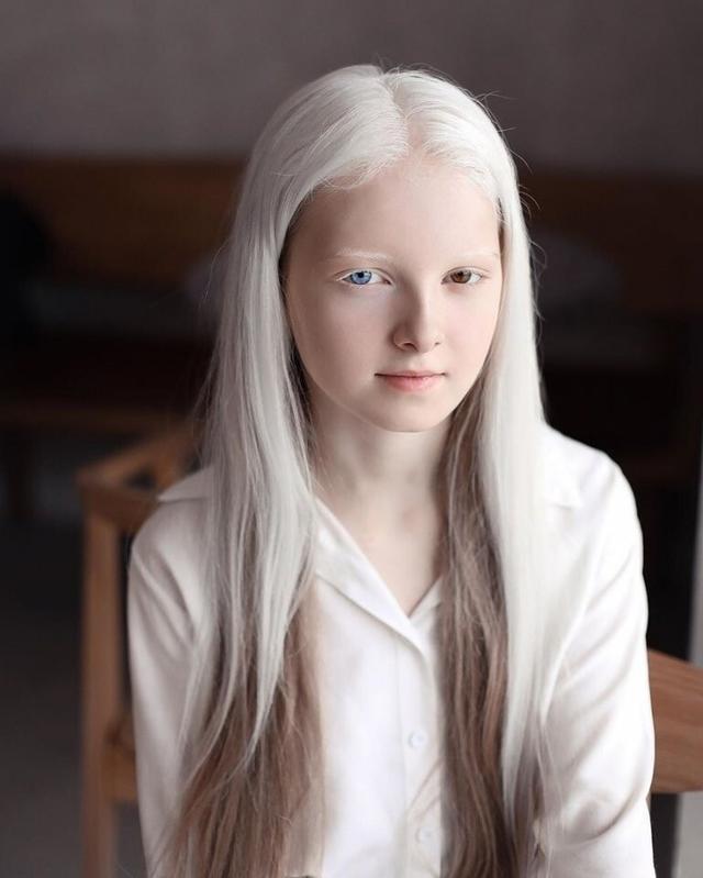 11岁美丽女孩天生白化病和异色瞳,美得像精灵,仿佛来自二次元!